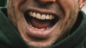 De 5 grootste oorzaken van gele tanden